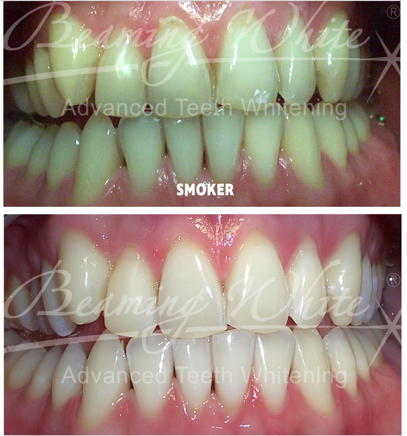 teeth whitening pic 1