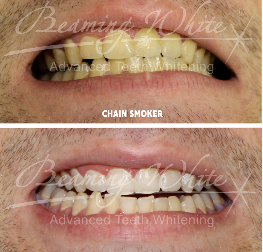 teeth whitening pic 3